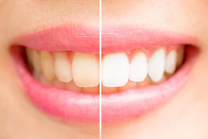 5 conseils pour avoir des dents blanches