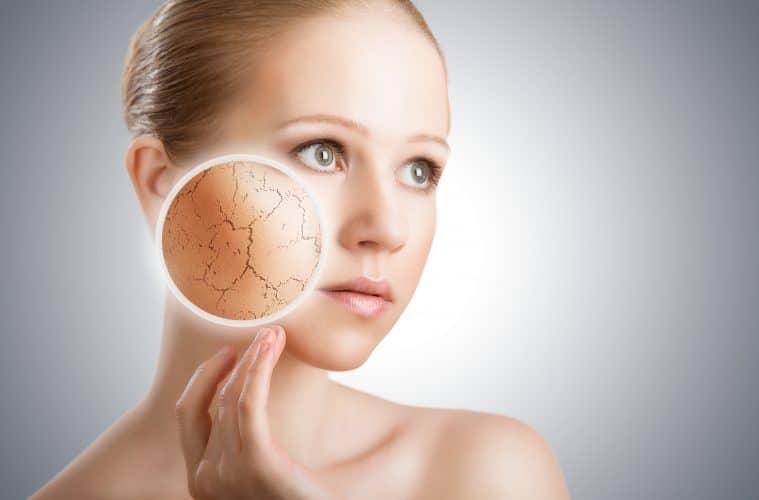 Remède naturel contre la peau atopique en hiver